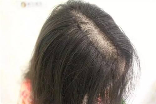 为什么掉头发?这些原因都可能会导致